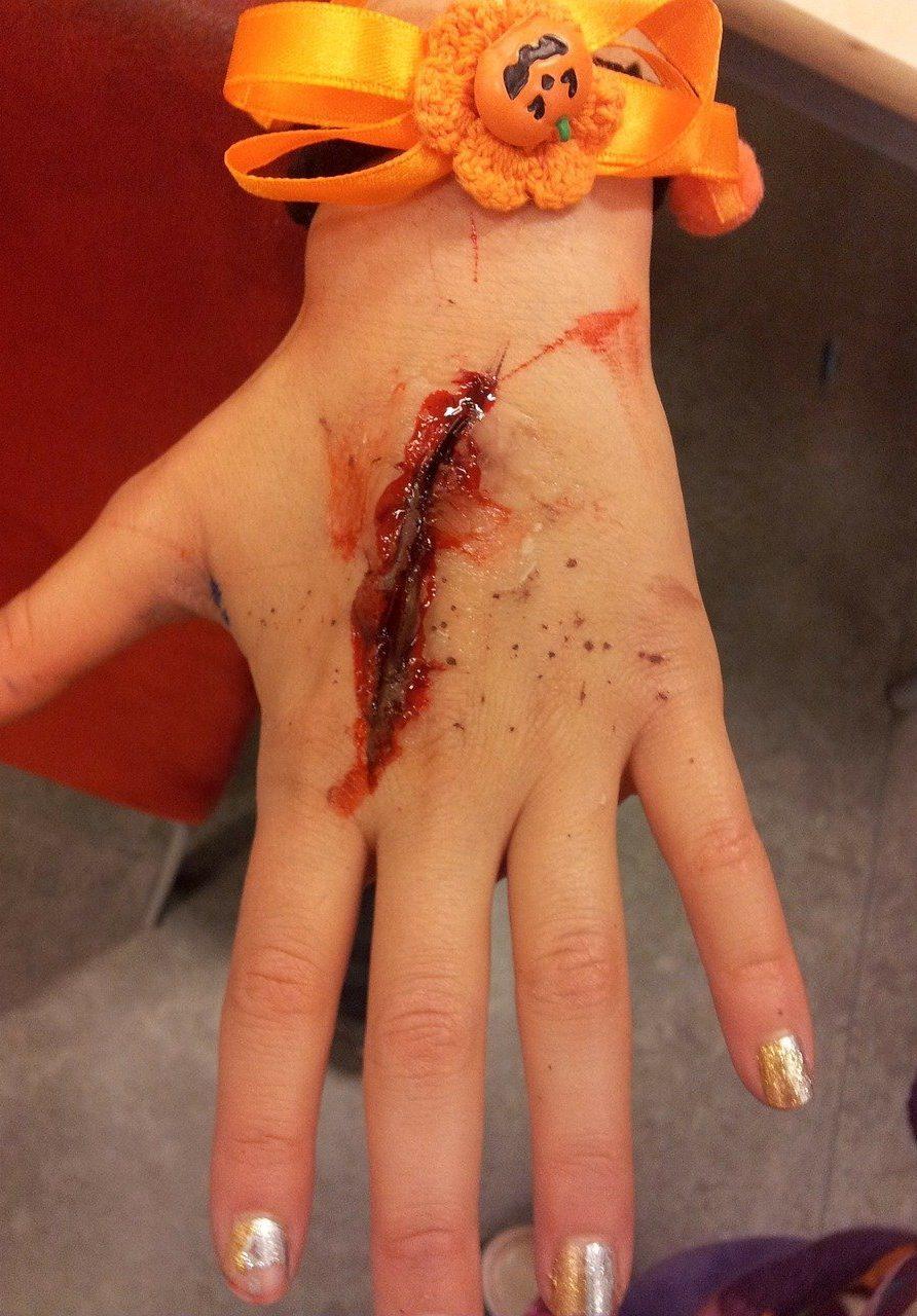 Verletzte Hand
